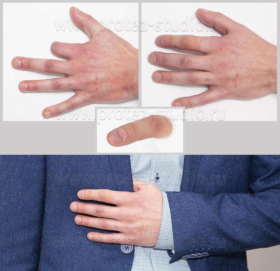 Киберпротез своими руками