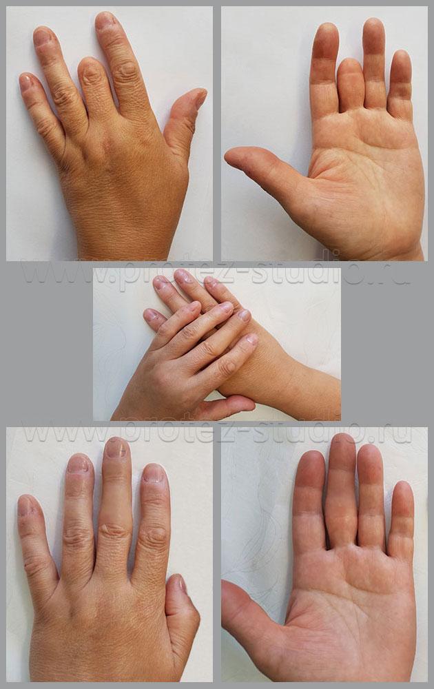 Почему похудели пальцы рук